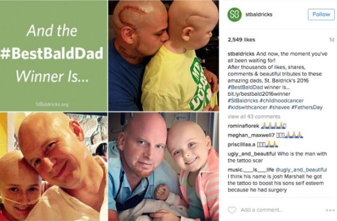Padre si tatua la stessa cicatrice alla testa del figlio. Amore puro